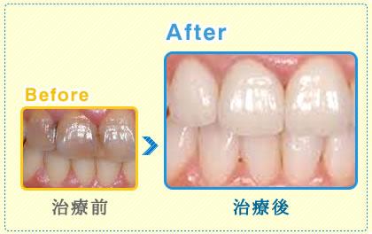 白い自然歯の治療も保険適応、『新技術CEREC』